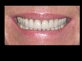 After Whitening, Before Bonding and Veneers