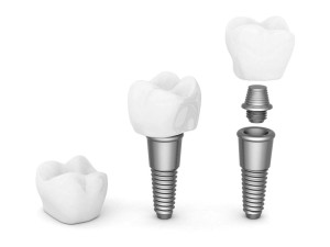 Dental Implants in Phoenix
