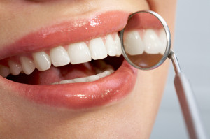 composite fillings  Scottsdale