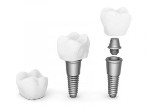 Dental Implants Phoenix