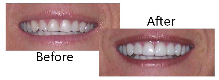 Prepless dental veneers Scottsdale, before and after