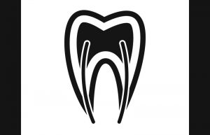pain free root canal therapy
