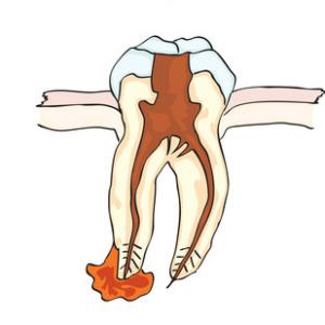 Abscessed Tooth, Scottsdale AZ, Dr. Reem Kidess