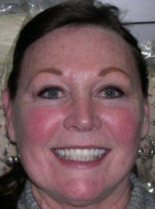 case study on dental implants