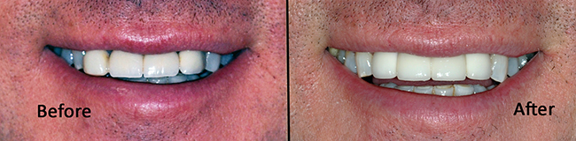 Before and After with Bridge and Dental Implants