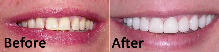 Veneers and Composite Bonding to Fix Gaps