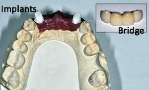 Dental Implants and bridge