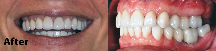 Restorative Sedation Dentistry after photos