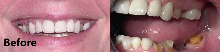 Restorative Sedation Dentistry before photos