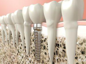 Phoenix, AZ Dental Implants