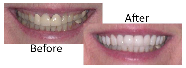 dental veneers Scottsdale before and after