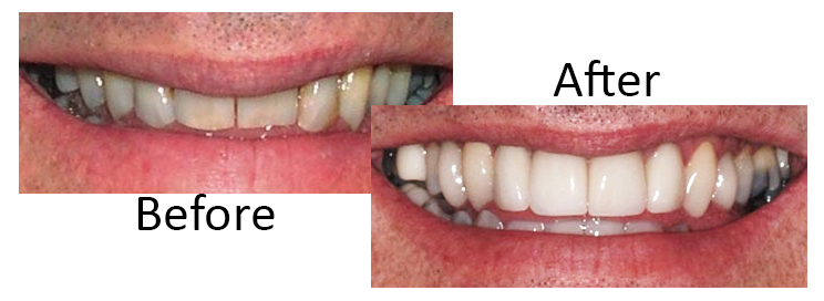 Traditional Dental Veneers before and after, Scottsdale