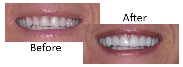 Prepless dental veneers Scottsdale