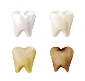 What causes teeth stains