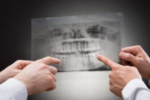 Can I Trust My Dentist?