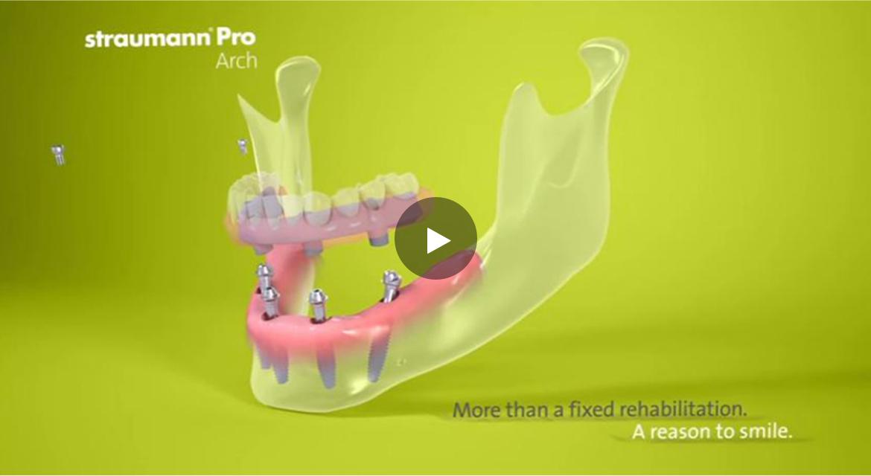 implants vs denture