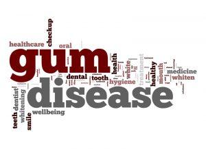 Heal Gum Disease