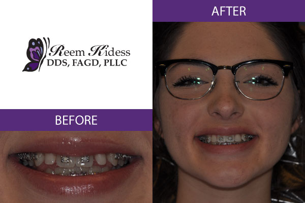 cosmetic dentistry scottsdale az