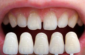 No Prep Dental Veneers