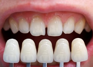 No Prep Dental Veneers