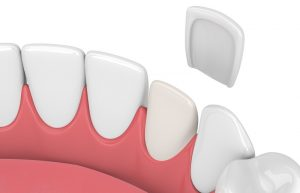 make dental veneers last longer