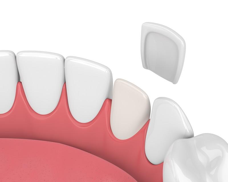 Is There a Way to Make Dental Veneers Last Longer? - Reem Kidess