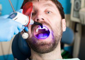 dental bonding procedure