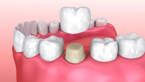 cerec dental crown