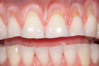 teeth fixed before and after