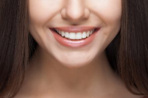smile restoration without braces