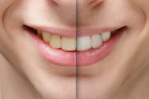 teeth whitening scottsdale