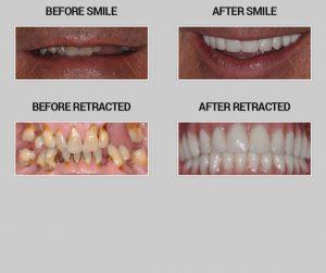 smile restoration