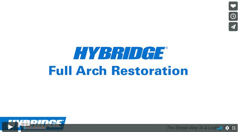 full arch restoration