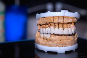 full mouth dental restoration