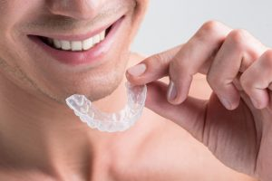 clear invisible braces