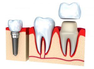dental crown installation