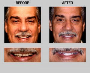 cosmetic dentistry scottsdale az