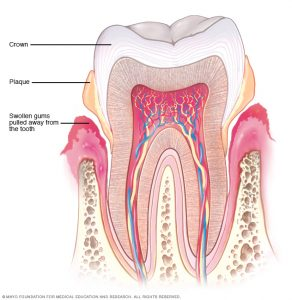 beginning stage of gum disease