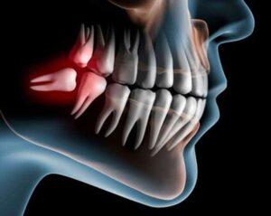 sedation wisdom teeth