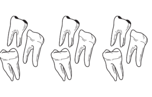 teeth and enamel loss