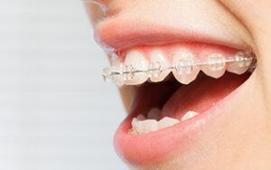 clear braces scottsdale